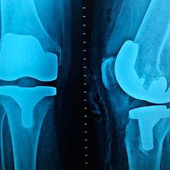 Post Quirúrgico ortesis
